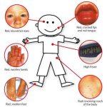 Boy - Symptoms of Kawasaki Disease